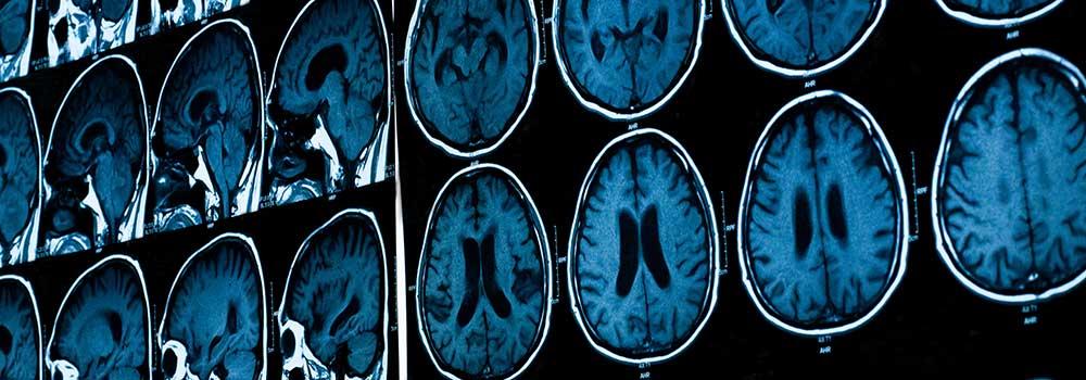 MRI-Viewer-Online-at-ArchitecturesLab